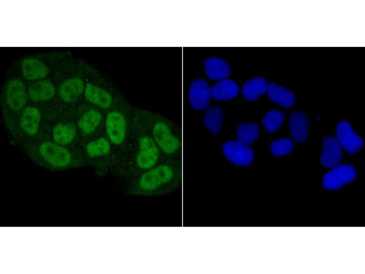 ICC staining BubR1 in Hela cells (green). The nuclear counter stain is DAPI (blue). Cells were fixed in paraformaldehyde, permeabilised with 0.25% Triton X100/PBS.
