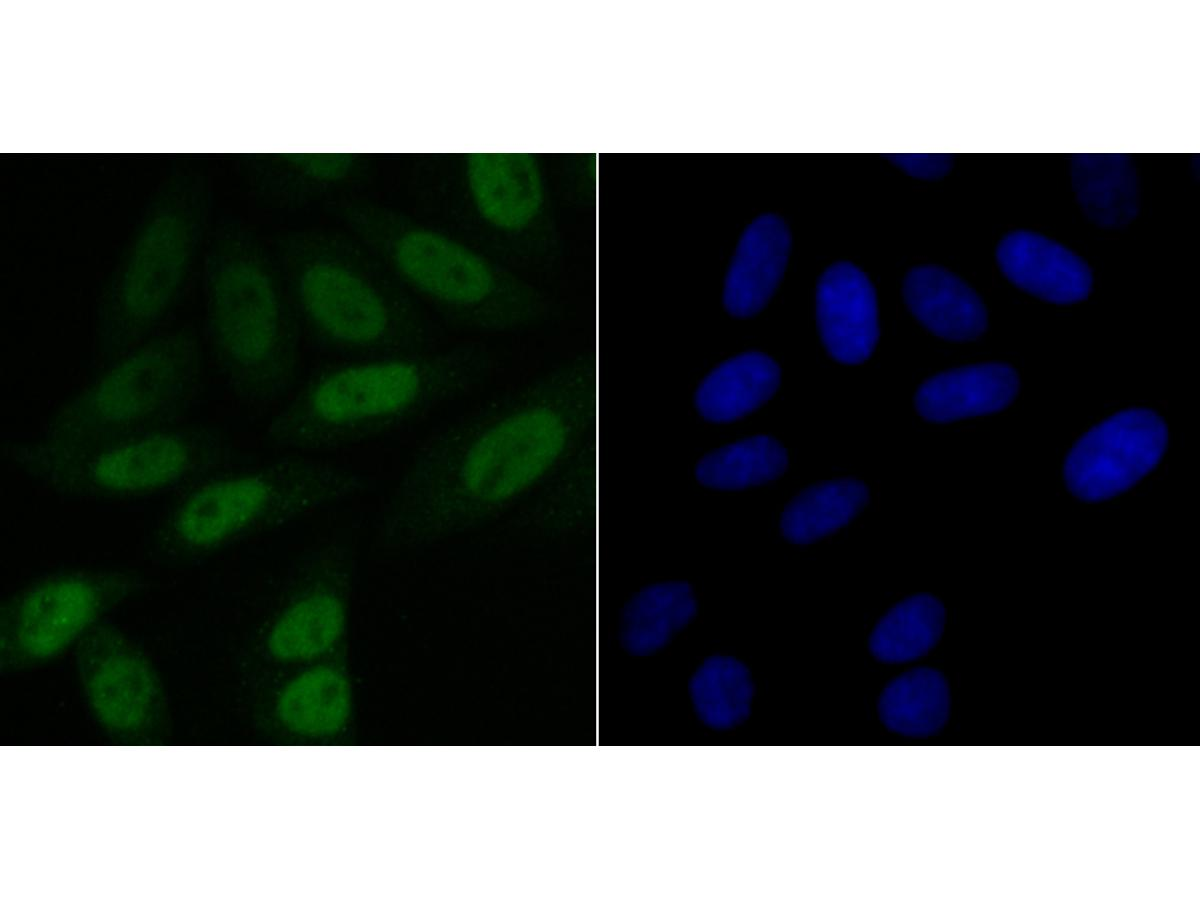 ICC staining BubR1 in SiHa cells (green). The nuclear counter stain is DAPI (blue). Cells were fixed in paraformaldehyde, permeabilised with 0.25% Triton X100/PBS.