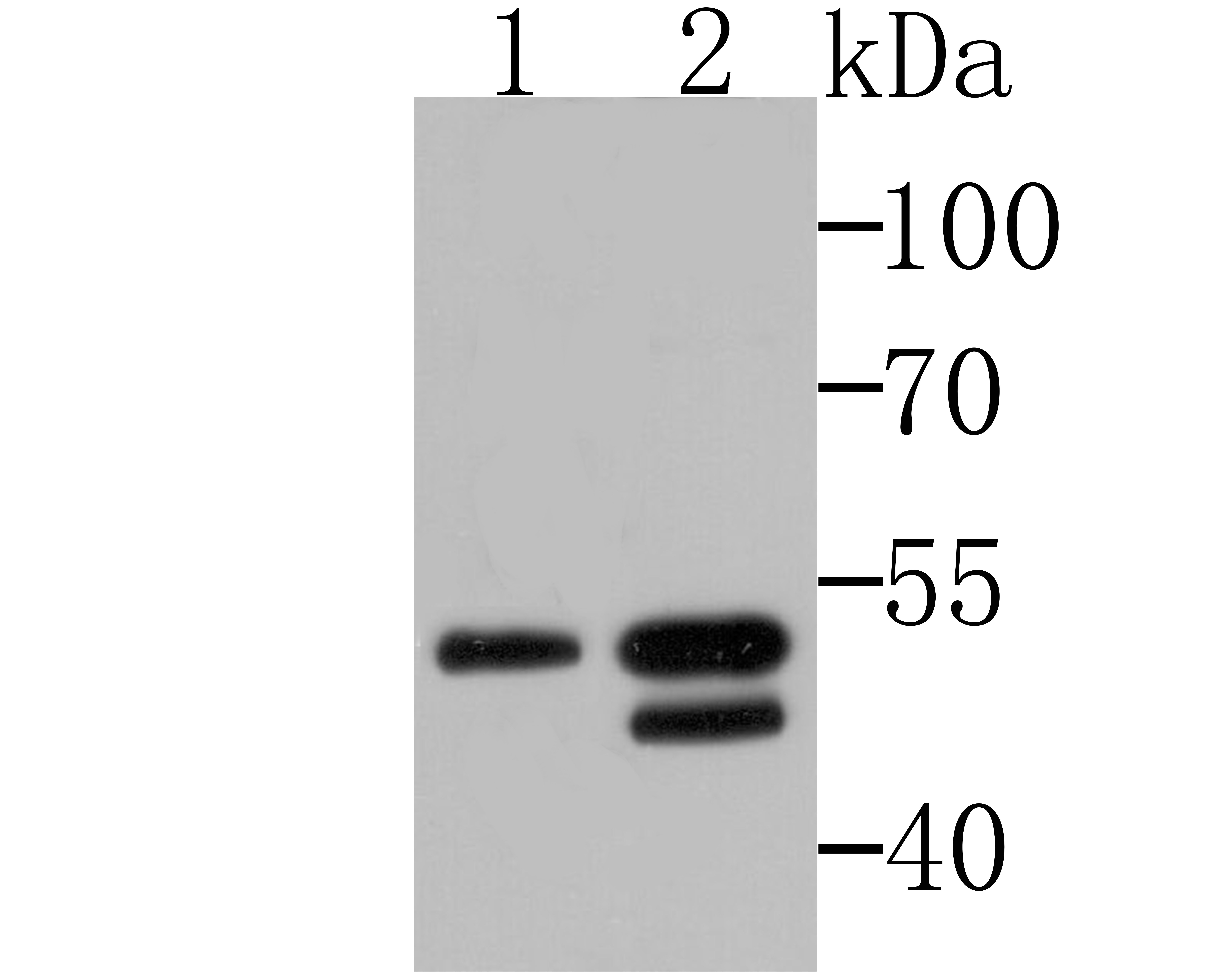 Western blot analysis of BHLHB9 on U937 and SH-SY-5Y cell lysates using anti-BHLHB9 antibody at 1/500 dilution.<br />
