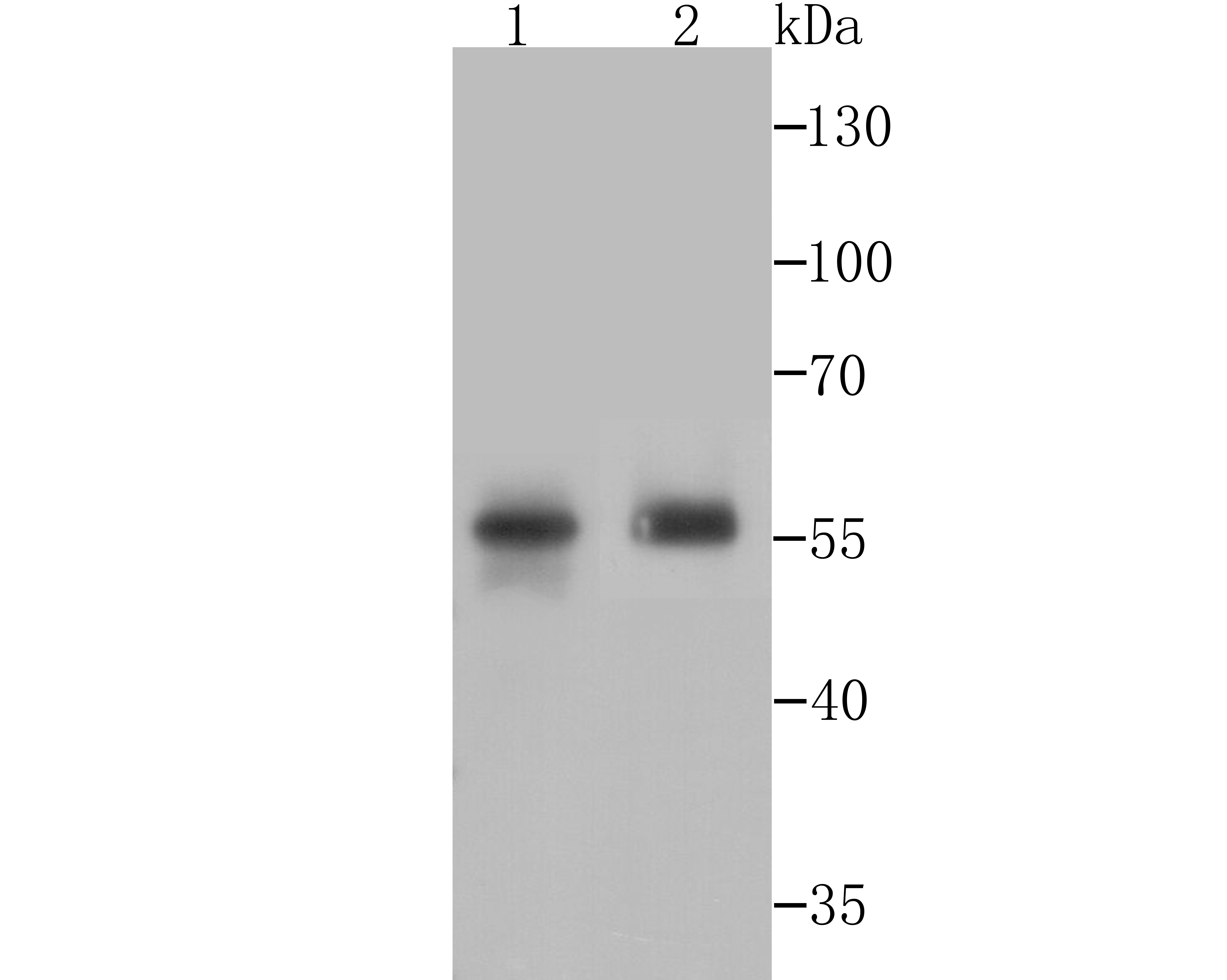 Western blot analysis of PTP1B on mouse prostate tissue and SiHa cell lysates using anti-PTP1B antibody at 1/500 dilution.