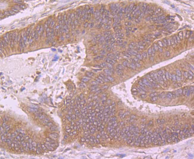 Immunohistochemical analysis of paraffin-embedded human colon cancer tissue using anti-BCHE antibody. Counter stained with hematoxylin.