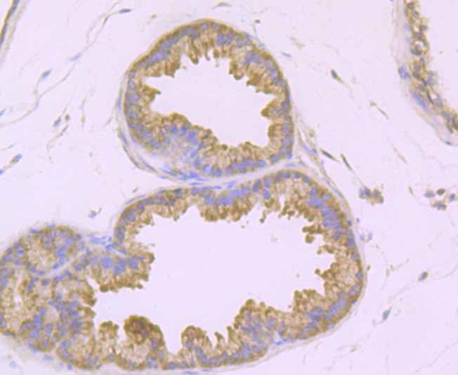 Immunohistochemical analysis of paraffin-embedded mouse prostate tissue using anti-TAK1 antibody. Counter stained with hematoxylin.
