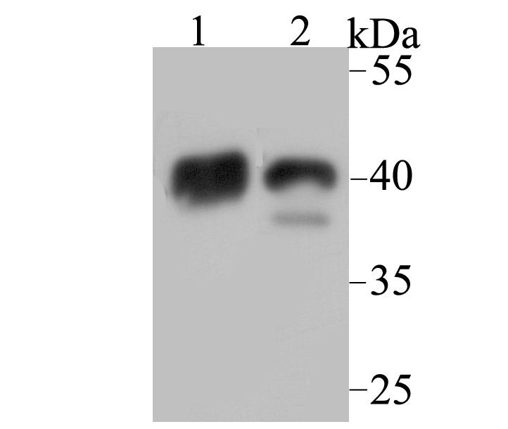 Western blot analysis of NDRG2 on mouse brain (1) and mouse skeletal muscle (2) tissue lysate using anti-NDRG2 antibody at 1/1,000 dilution.