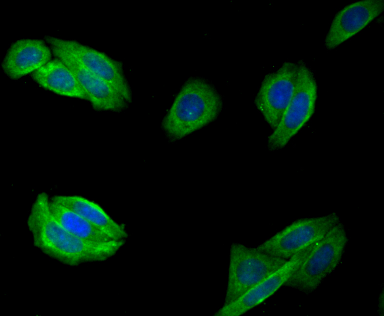 ICC staining Fibulin 5 in SiHa cells (green). The nuclear counter stain is DAPI (blue). Cells were fixed in paraformaldehyde, permeabilised with 0.25% Triton X100/PBS.