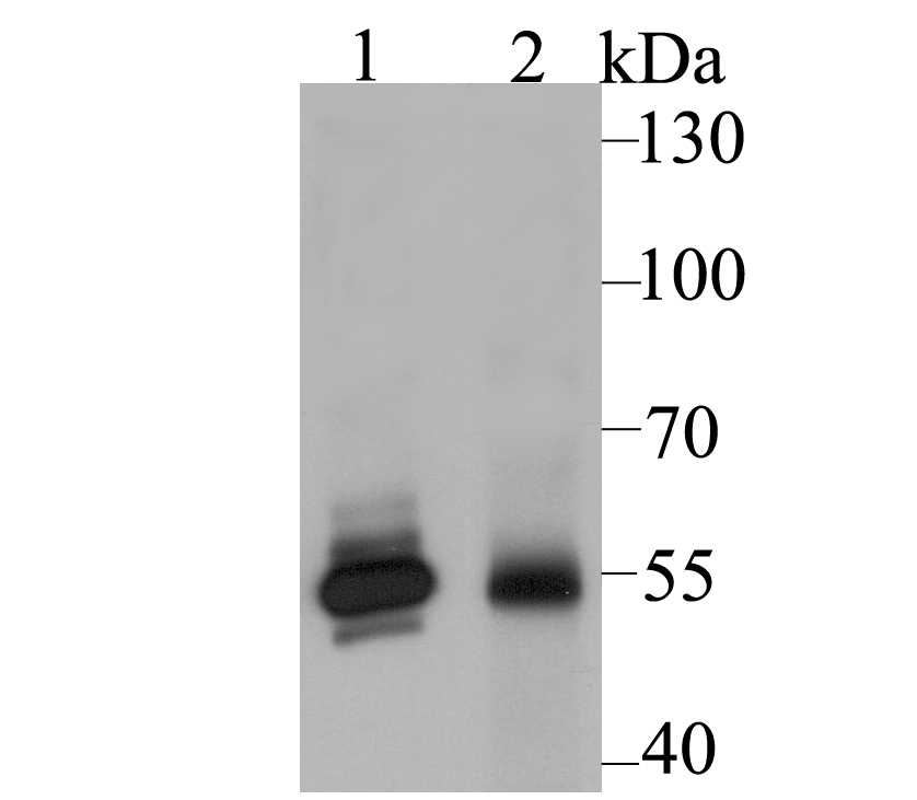 Western blot analysis of GLUR on different lysates using anti-GLUR antibody at 1/2,000 dilution.<br />   Positive control:<br />   Lane 1: A549 <br />   Lane 2: Rat liver tissue