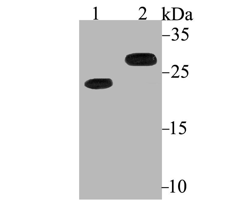 Western blot analysis of Bcl2 on different lysates using anti-Bcl2 antibody at 1/200 dilution.<br />  Positive control:<br />  Lane 1: HL-60 <br />      Lane 2: Mouse colon