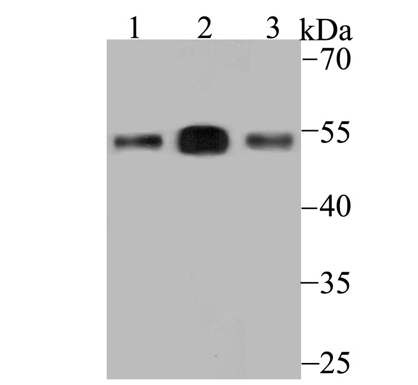 Western blot analysis of ERGI3 on different lysates using anti-ERGI3 antibody at 1/500 dilution.<br />  Positive control:<br />  Lane 1: SiHa  <br />       Lane 2: Human placenta<br />  Lane 3: Rat bone marrow