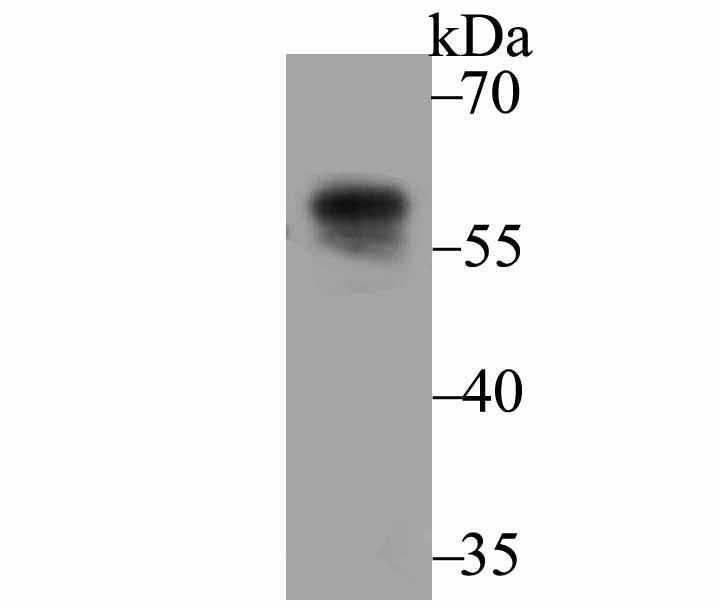 Western blot analysis of UAP1 on SiHa cell lysate using anti-UAP1 antibody at 1/500 dilution.