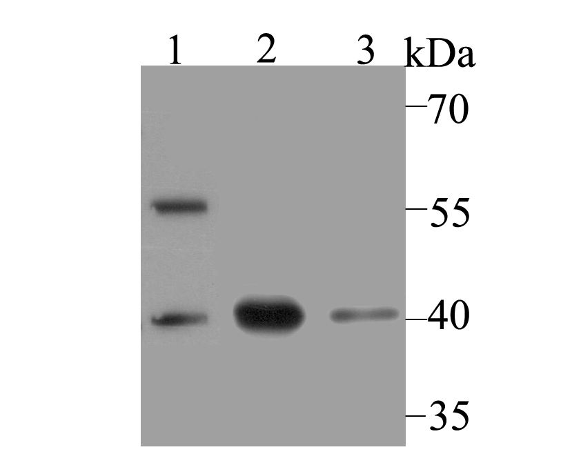 Western blot analysis of macroH2A.1 on different lysates using anti-macroH2A.1 antibody at 1/500 dilution.<br />   Positive control:<br />   Lane 1: mouse pancreas <br />   Lane 2: SiHa<br />   Lane 3: PC-3M