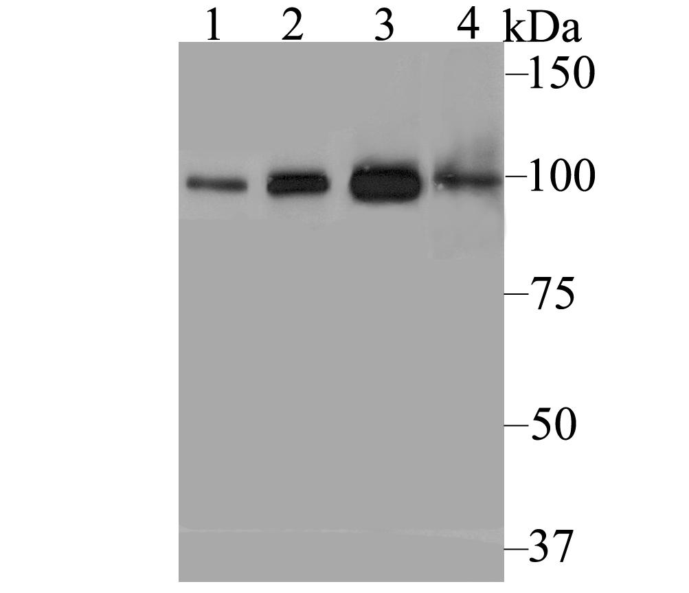Western blot analysis of USP13 on different lysates using anti-USP13 antibody at 1/1,000 dilution.<br />  Positive control:<br />  Lane 1: 293T <br />           Lane 2: Daudi<br />  Lane 3: Mouse testis <br />   Lane 4: Rat brain
