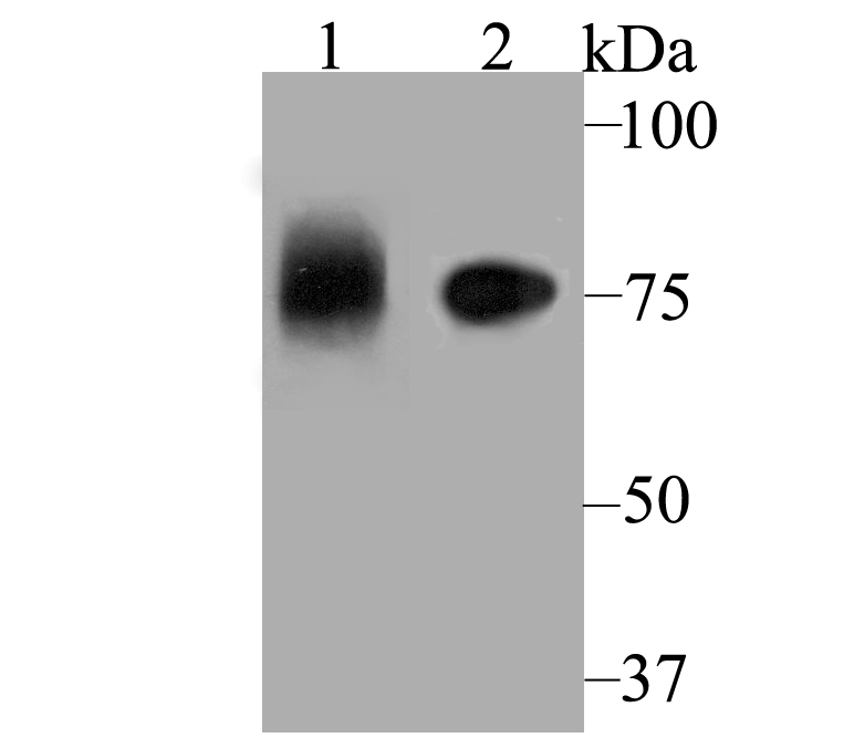 Western blot analysis of ApoER2 on different lysates using anti-ApoER2 antibody at 1/1,000 dilution.<br />  Positive control:<br />  Lane 1: Mouse placenta<br />    Lane 2: SH-SY-5Y