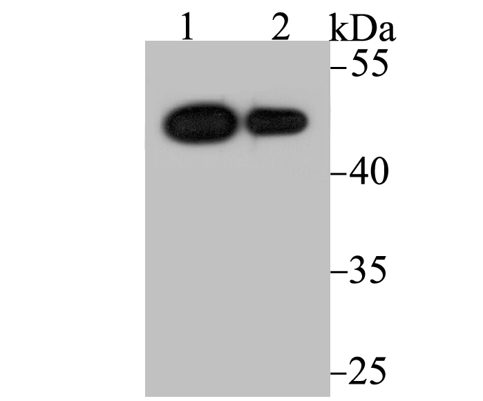 Western blot analysis of Vitamin D Receptor on different cell lysate using anti-Vitamin D Receptor antibody at 1/2,000 dilution.<br />   Positive control:<br />   Lane 1: U937<br />   Lane 2: SK-Br-3
