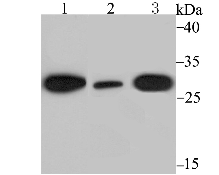 Western blot analysis of DDIT3 on different lysates using anti-DDIT3 antibody at 1/500 dilution.<br />   Positive control:<br />   Lane 1: Mouse testis tissue<br />   Lane 2: LOVO<br />   Lane 3: Mouse brain tissue