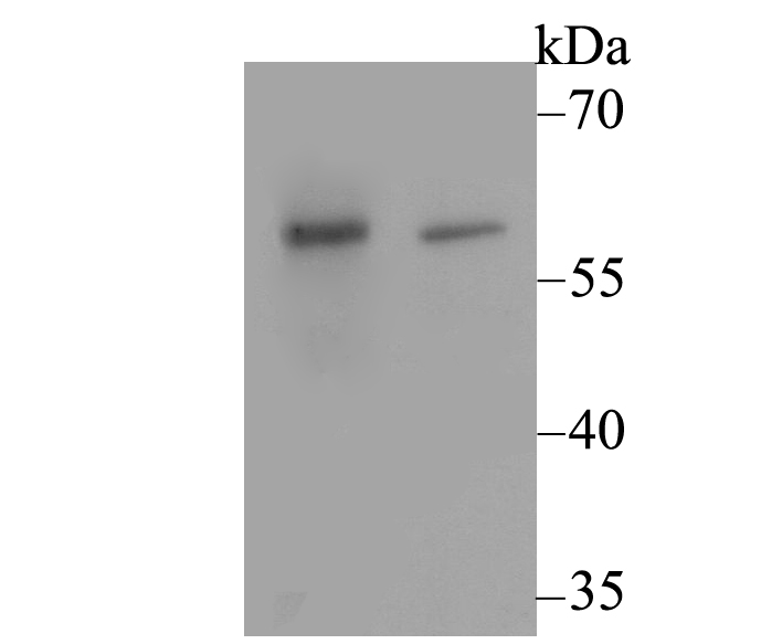 Western blot analysis of CACNB3 on different lysates using anti-CACNB3 antibody at 1/500 dilution.<br />  Positive control:<br />  Lane 1: Rat brain tissue<br />    Lane 2: SKOV-3