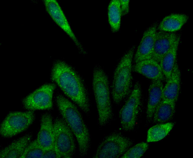 ICC staining Eg5 in SiHa cells (green). The nuclear counter stain is DAPI (blue). Cells were fixed in paraformaldehyde, permeabilised with 0.25% Triton X100/PBS.