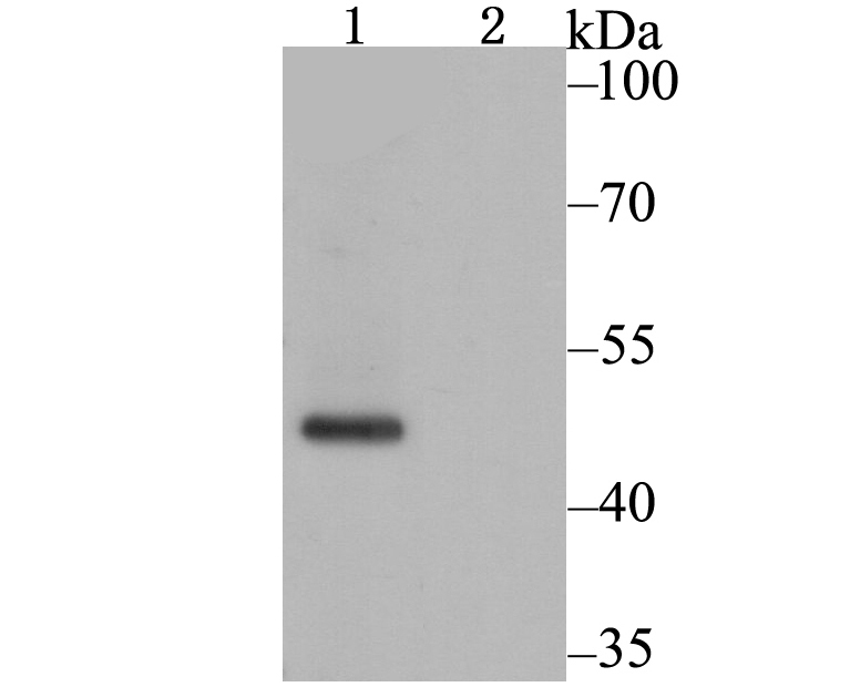 Western blot analysis of CACNB1 on SH-SY-5Y cell lysate using anti-CACNB1 antibody at 1/1,000 dilution.<br />   Lane 1: SH-SY-5Y cell lysate<br />   Lane 2: SH-SY-5Y cell lysate with immunizaiton peptide