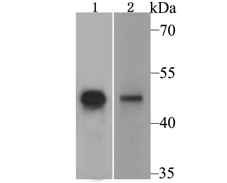 Western blot analysis of PPAR gamma on PC-12 cell and human liver tissue lysate using anti-PPAR gamma antibody at 1/500 dilution.