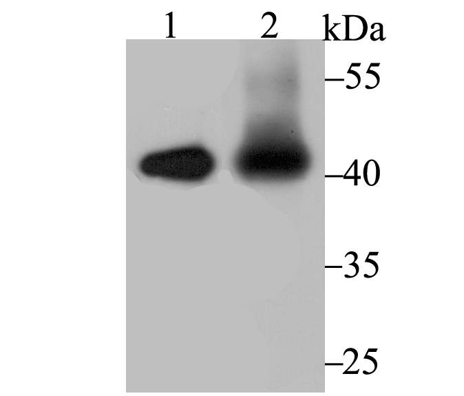 s of IL12B on different lysates using anti-IL12B antibody at 1/500 dilution.<br />  Positive control:<br />  Lane 1: Hela<br />  Lane 2: Mouse placenta<br />