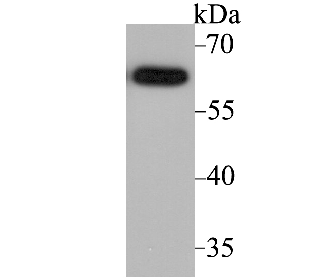 Western blot analysis of ACCN2 on SH-SY-5Y cell lysate using anti-ACCN2 antibody at 1/2,000 dilution.
