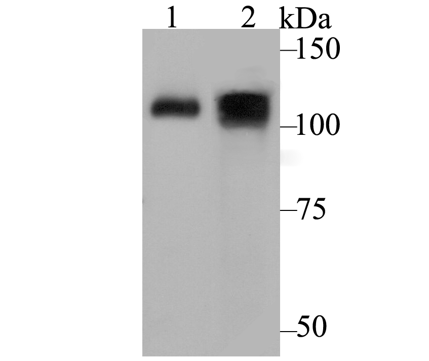 Western blot analysis of ATP2A1 on different lysates using anti-ATP2A1 antibody at 1/500 dilution.<br />   Positive control:<br />   Lane 1: Mouse skeletal muscle tissue <br />   Lane 2: Human skeletal muscle tissue