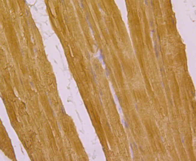 Immunohistochemical analysis of paraffin-embedded rat skeletal muscle tissue using anti-ATP2A1 antibody. Counter stained with hematoxylin.