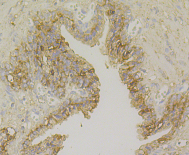 Immunohistochemical analysis of paraffin-embedded human prostate tissue using anti-CD276 antibody. Counter stained with hematoxylin.