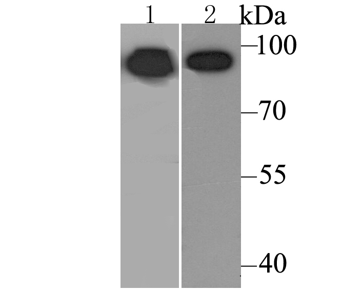 Western blot analysis of Calnexin on mouse lung tissue (1) and Daudi cell (2) lysate using anti-Calnexin antibody at 1/500 dilution.