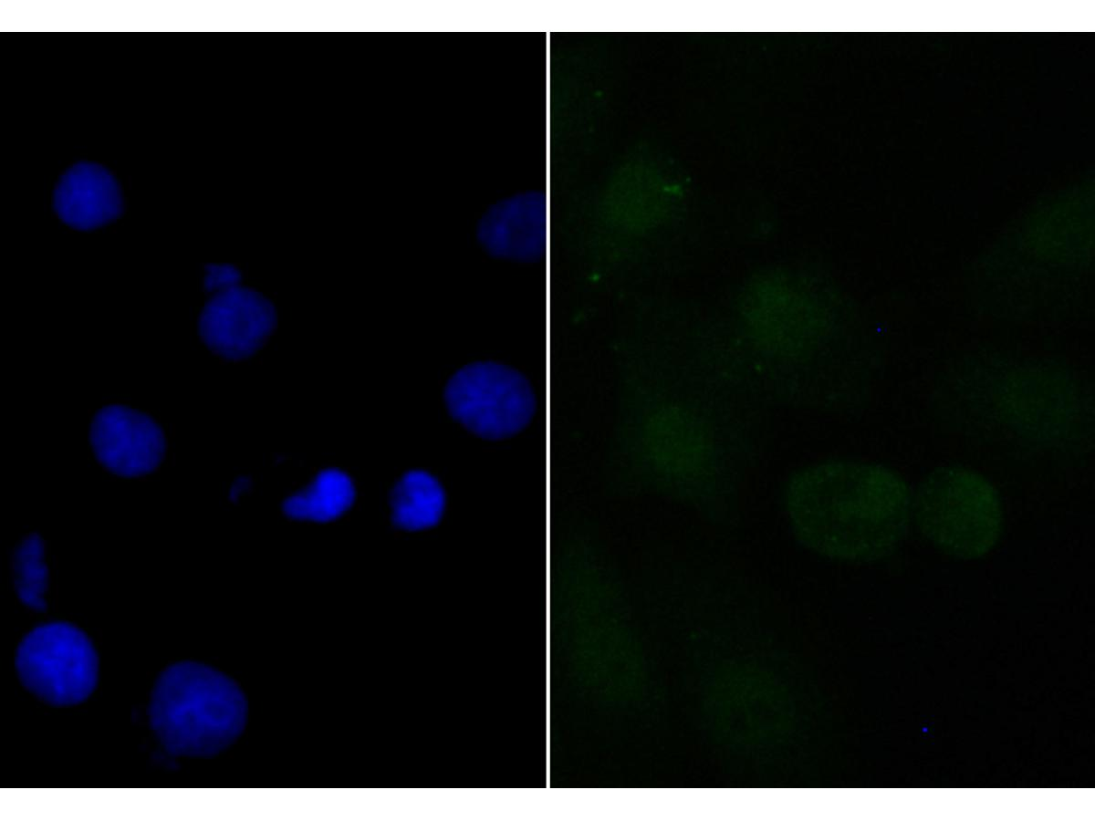 ICC staining APR3 in A549 cells (green). The nuclear counter stain is DAPI (blue). Cells were fixed in paraformaldehyde, permeabilised with 0.25% Triton X100/PBS.