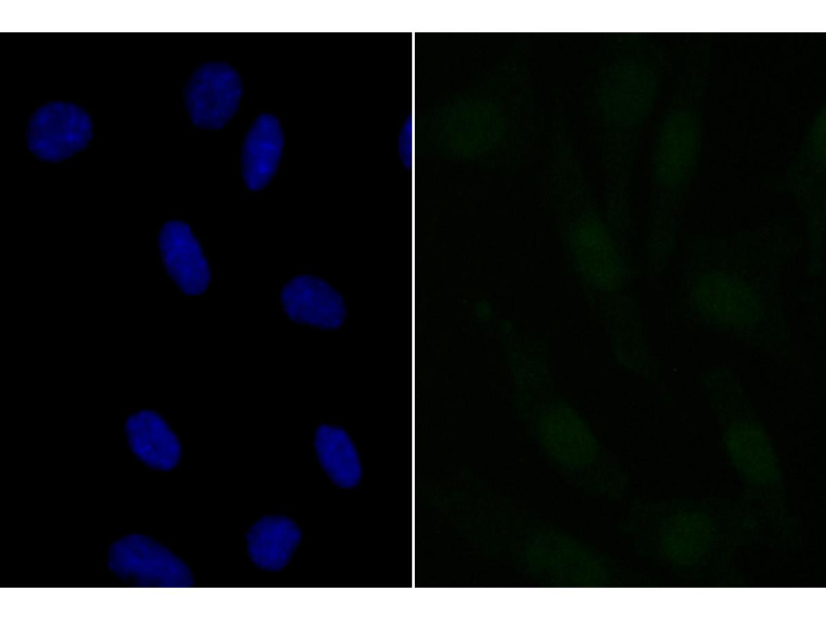 ICC staining APR3 in SH-SY-5Y cells (green). The nuclear counter stain is DAPI (blue). Cells were fixed in paraformaldehyde, permeabilised with 0.25% Triton X100/PBS.