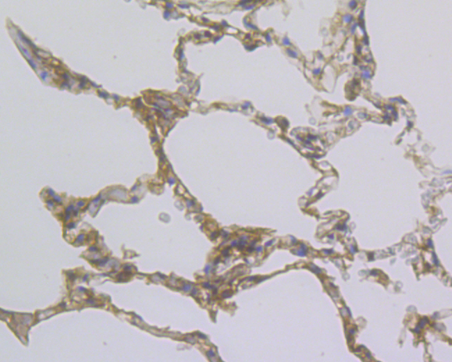 Immunohistochemical analysis of paraffin-embedded human lung tissue using anti-Methyltransferase-like 26 antibody. Counter stained with hematoxylin.