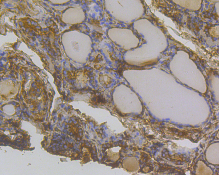 Immunohistochemical analysis of paraffin-embedded human thyroid cancer tissue using anti-Methyltransferase-like 26 antibody. Counter stained with hematoxylin.