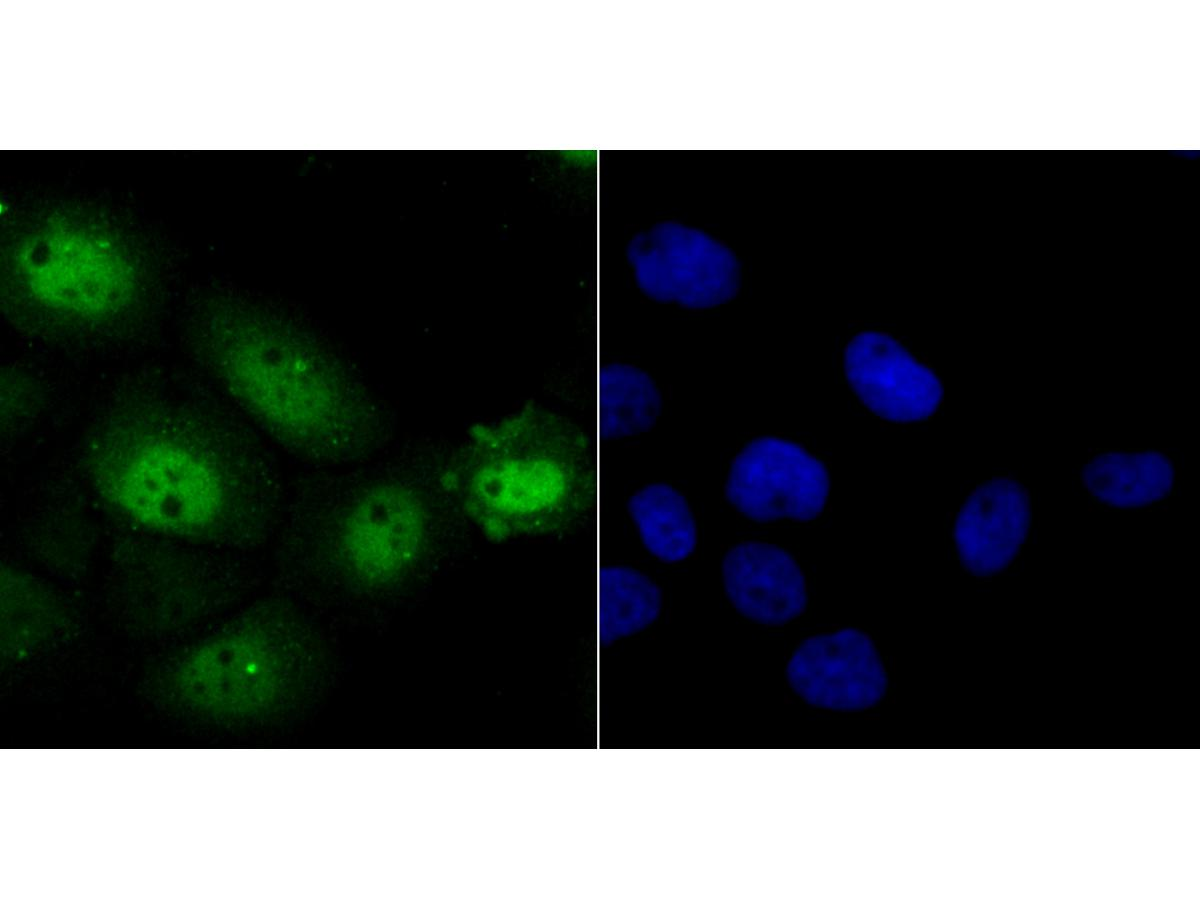 ICC staining Nfic in A431 cells (green). The nuclear counter stain is DAPI (blue). Cells were fixed in paraformaldehyde, permeabilised with 0.25% Triton X100/PBS.
