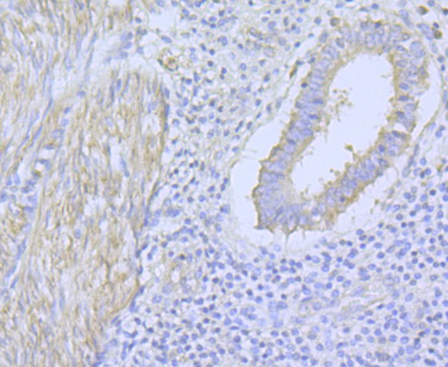 Immunohistochemical analysis of paraffin-embedded human uterus tissue using anti-CACNA1C antibody. The section was pre-treated using heat mediated antigen retrieval with Tris-EDTA buffer (pH 9.0) for 20 minutes.The tissues were blocked in 1% BSA for 30 minutes at room temperature, washed with ddH2O and PBS, and then probed with the primary antibody (ER1803-49, 1/50) for 30 minutes at room temperature. The detection was performed using an HRP conjugated compact polymer system. DAB was used as the chromogen. Tissues were counterstained with hematoxylin and mounted with DPX.