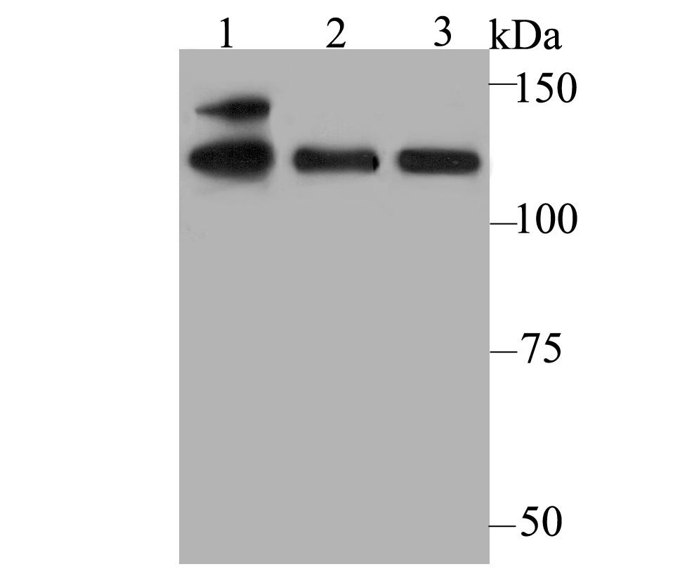 Western blot analysis of USP28 on different cell lysates using anti-USP28 antibody at 1/500 dilution.<br />   Positive control:<br />   Lane 1: K562<br />   Lane 2: A549<br />   Lane 3: Daudi