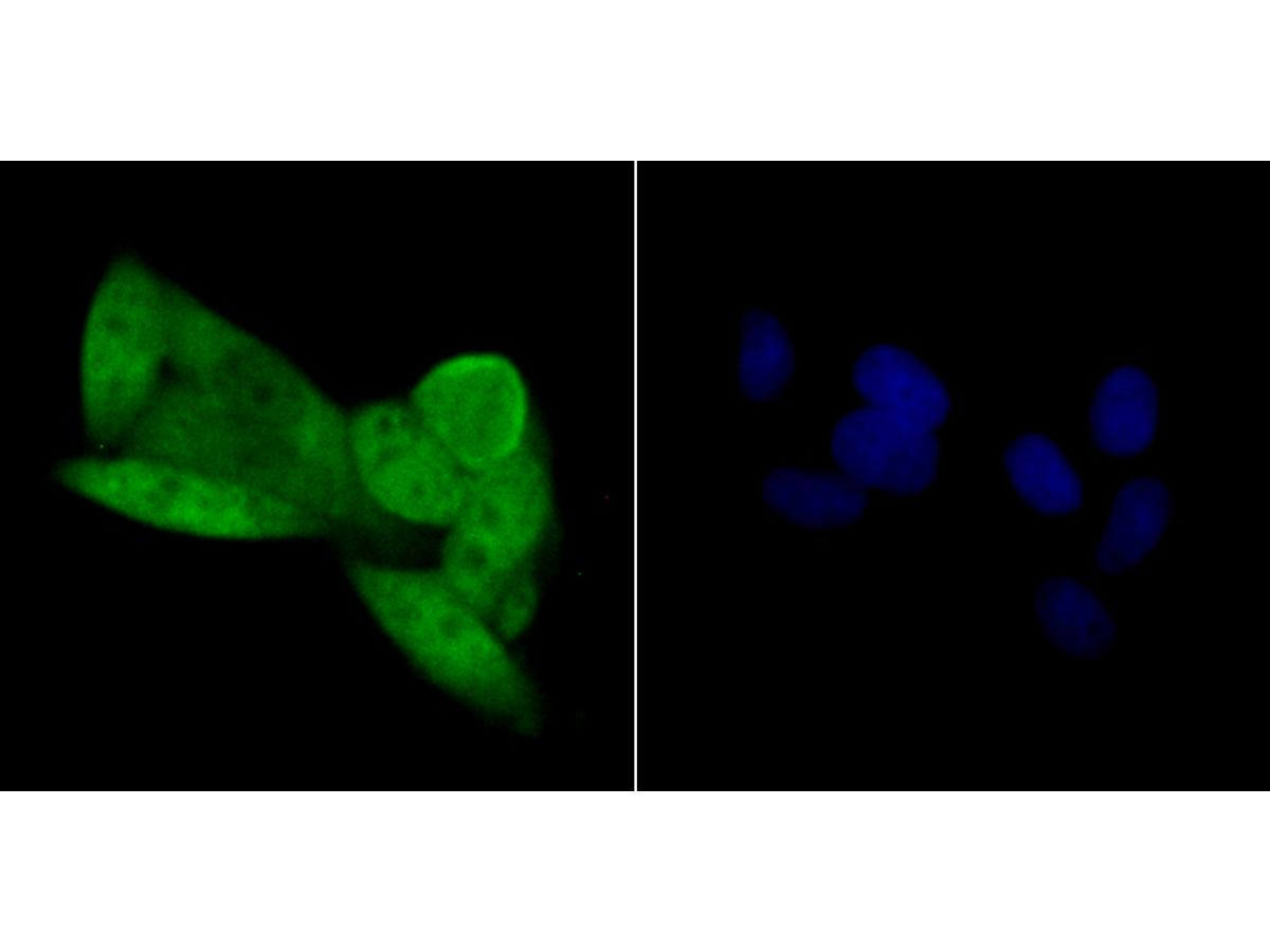 ICC staining CDKN2A/p16INK4a in Hela cells (green). The nuclear counter stain is DAPI (blue). Cells were fixed in paraformaldehyde, permeabilised with 0.25% Triton X100/PBS.