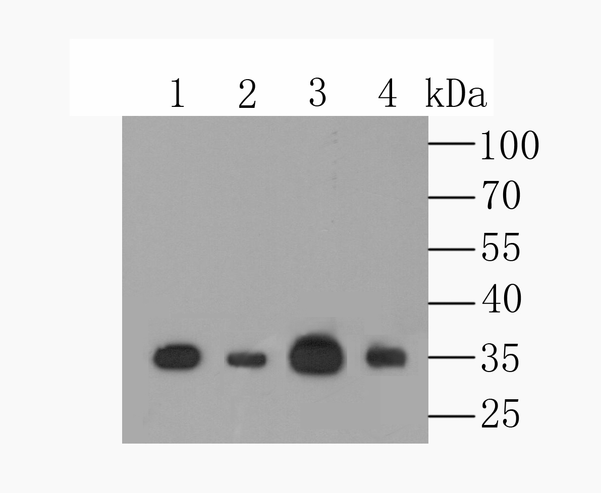 Western blot analysis of MCU on different lysates using anti-MCU antibody at 1/500 dilution.<br />   Positive control:<br />   Lane 1: A549 <br />   Lane 3: mouse spleen tissue<br />   Lane 2: HL-60 <br />   Lane 4: mouse brain tissue