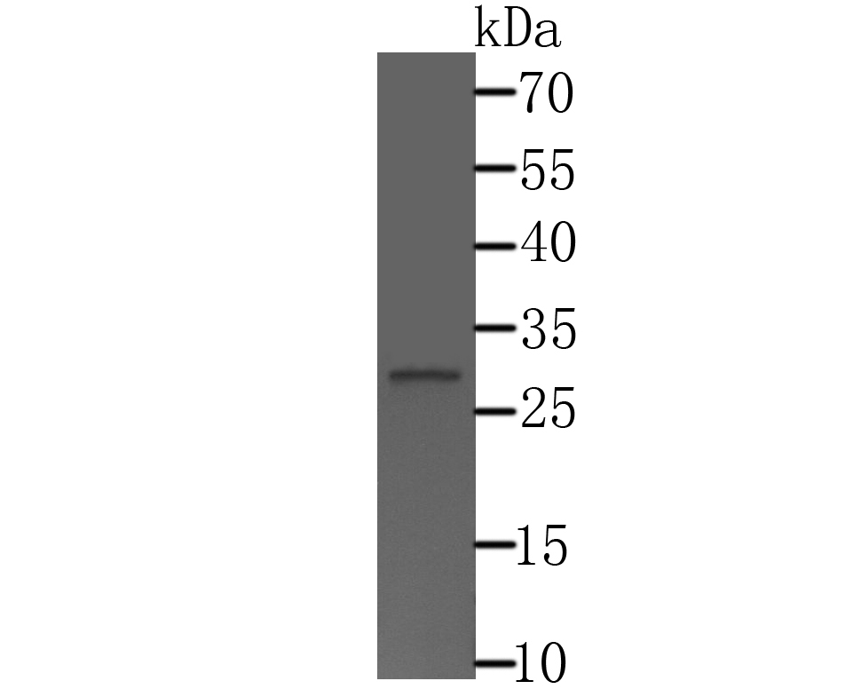 Western blot analysis of CTDSPL on HepG2 cell lysate using anti-CTDSPL antibody at 1/500 dilution.