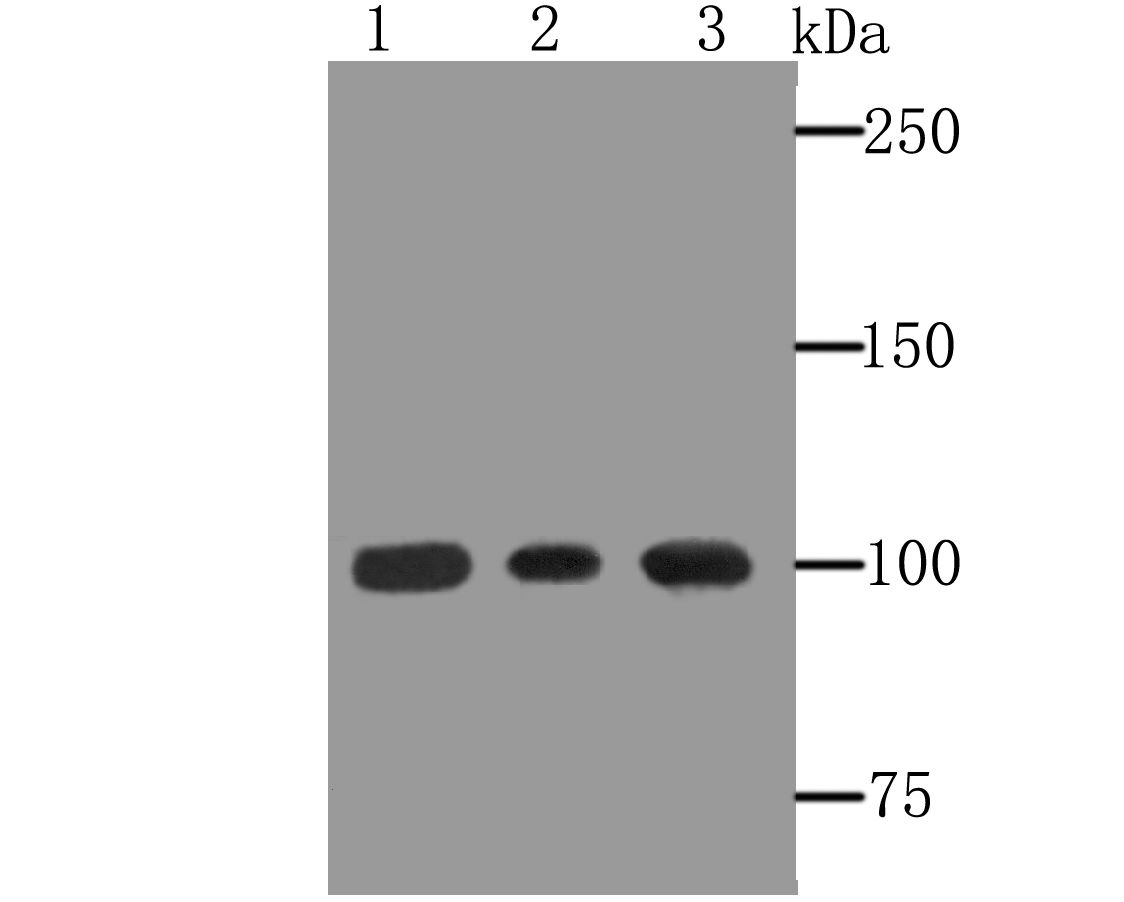 Western blot analysis of alpha Actinin on different lysates using anti-alpha Actinin antibody at 1/500 dilution.<br />  Positive control:<br />  Lane 1: A431<br />  Lane 2: Rat colon tissue<br />  Lane 3: Mouse colon tissue<br />