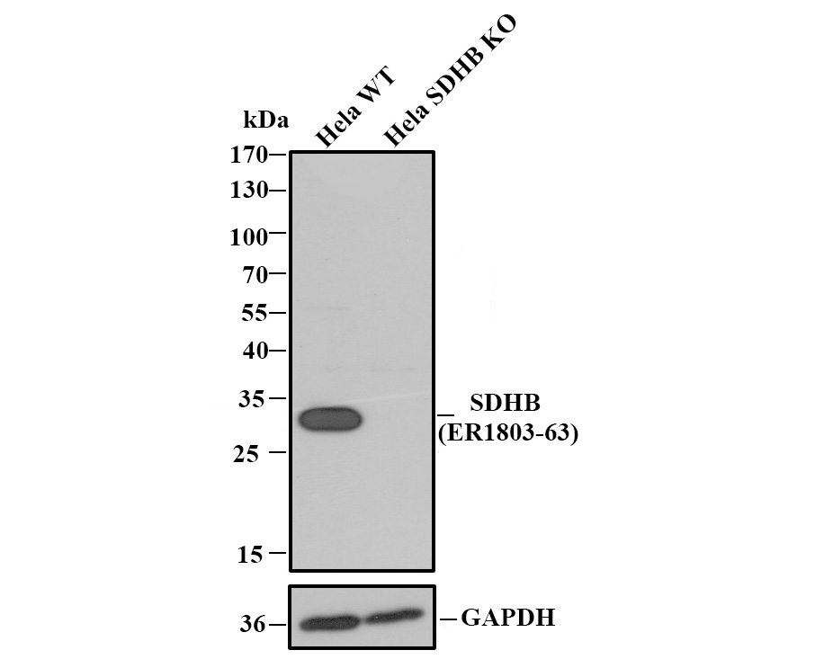Western blot analysis of SDHB on different cell lysate using anti-SDHB antibody at 1/1,000 dilution.<br />   Positive control:<br />   Lane 1: human liver<br />   Lane 2: mouse liver<br />   Lane 3: rat liver<br />   Lane 4: rat liver, preincubated with the immunization protein.