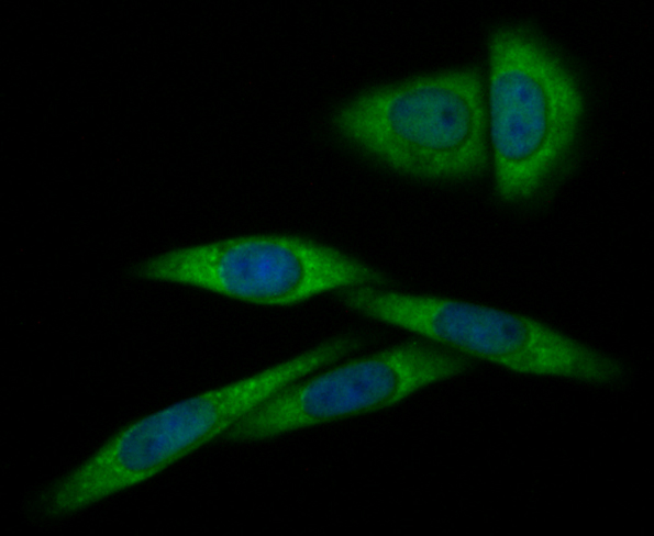 ICC staining Annexin A1 in SiHa cells (green). Formalin fixed cells were permeabilized with 0.1% Triton X-100 in TBS for 10 minutes at room temperature and blocked with 1% Blocker BSA for 15 minutes at room temperature. Cells were probed with Annexin A1 polyclonal antibody at a dilution of 1:100 for at least 1 hour at room temperature, washed with PBS. Alexa Fluorc™ 488 Goat anti-Rabbit IgG was used as the secondary antibody at 1/100 dilution. The nuclear counter stain is DAPI (blue).