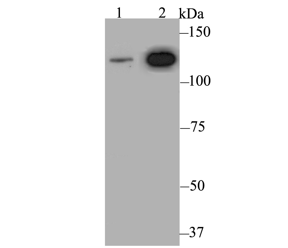 Western blot analysis of Rad21 on different lysates. Proteins were transferred to a PVDF membrane and blocked with 5% BSA in PBS for 1 hour at room temperature. The primary antibody was used at a 1:500 dilution in 5% BSA at room temperature for 2 hours. Goat Anti-Rabbit IgG - HRP Secondary Antibody (HA1001) at 1:5,000 dilution was used for 1 hour at room temperature.<br /> Positive control: <br /> Lane 1: Mouse ovary tissue lysate <br /> Lane 2: Daudi cell lysate