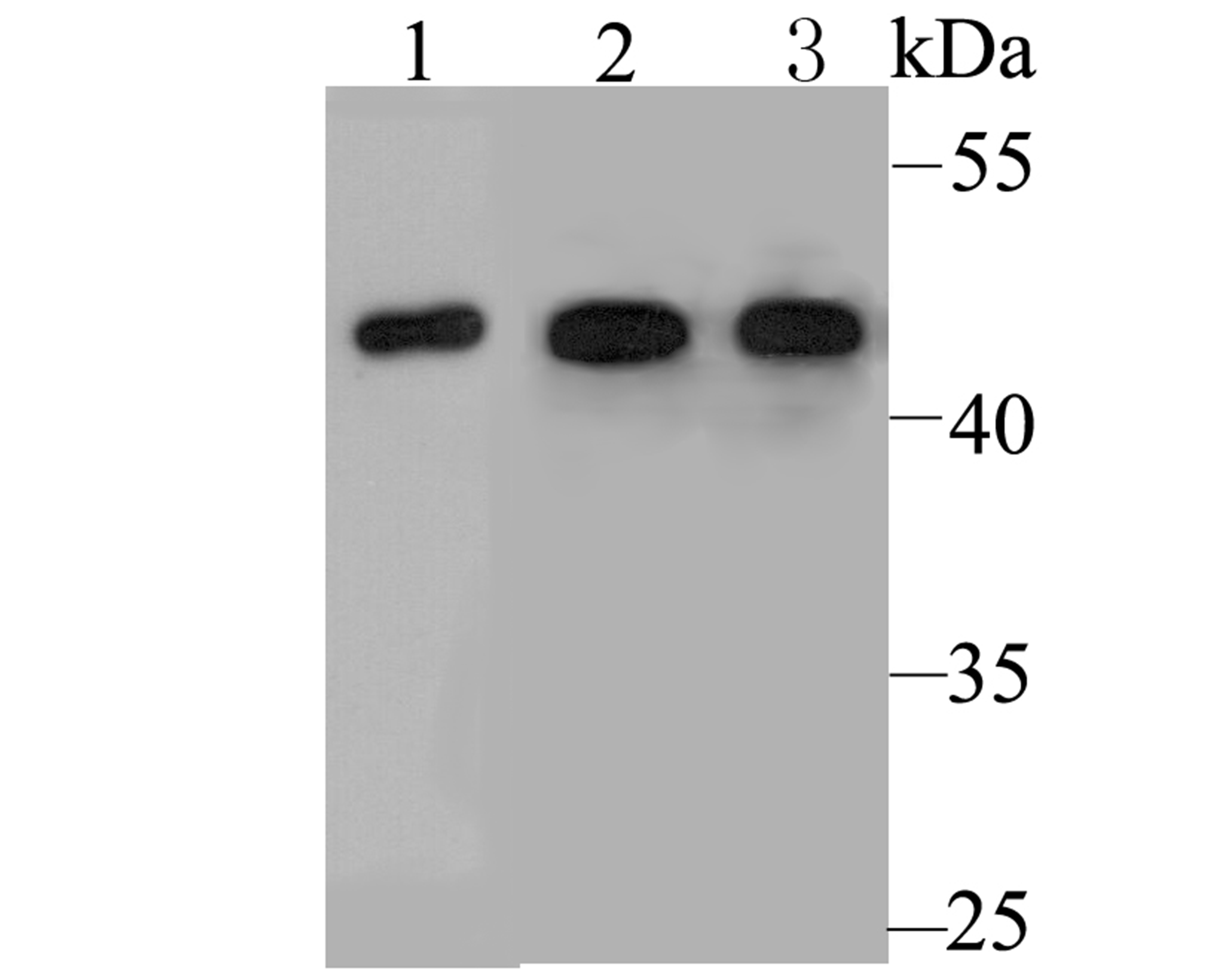 Western blot analysis of Cytokeratin 19 on rat lung tissue lysate. Proteins were transferred to a PVDF membrane and blocked with 5% BSA in PBS for 1 hour at room temperature. The primary antibody was used at a 1:20,000 dilution in 5% BSA at room temperature for 2 hours. Goat Anti-Rabbit IgG - HRP Secondary Antibody (HA1001) at 1:5,000 dilution was used for 1 hour at room temperature.<br /> Positive control: <br /> Lane 1: Rat lung tissue lysate<br /> Lane 2: MCF-7 cell lysate<br /> Lane 3: Mouse lung tissue lysate
