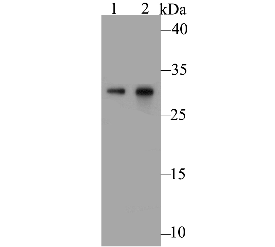 Western blot analysis of Galectin 3 on different lysates. Proteins were transferred to a PVDF membrane and blocked with 5% BSA in PBS for 1 hour at room temperature. The primary antibody was used at a 1:500 dilution in 5% BSA at room temperature for 2 hours. Goat Anti-Rabbit IgG - HRP Secondary Antibody (HA1001) at 1:5,000 dilution was used for 1 hour at room temperature.<br />  Positive control: <br />  Lane 1: SiHa cell lysate<br />  Lane 2: Mouse colon tissue lysate