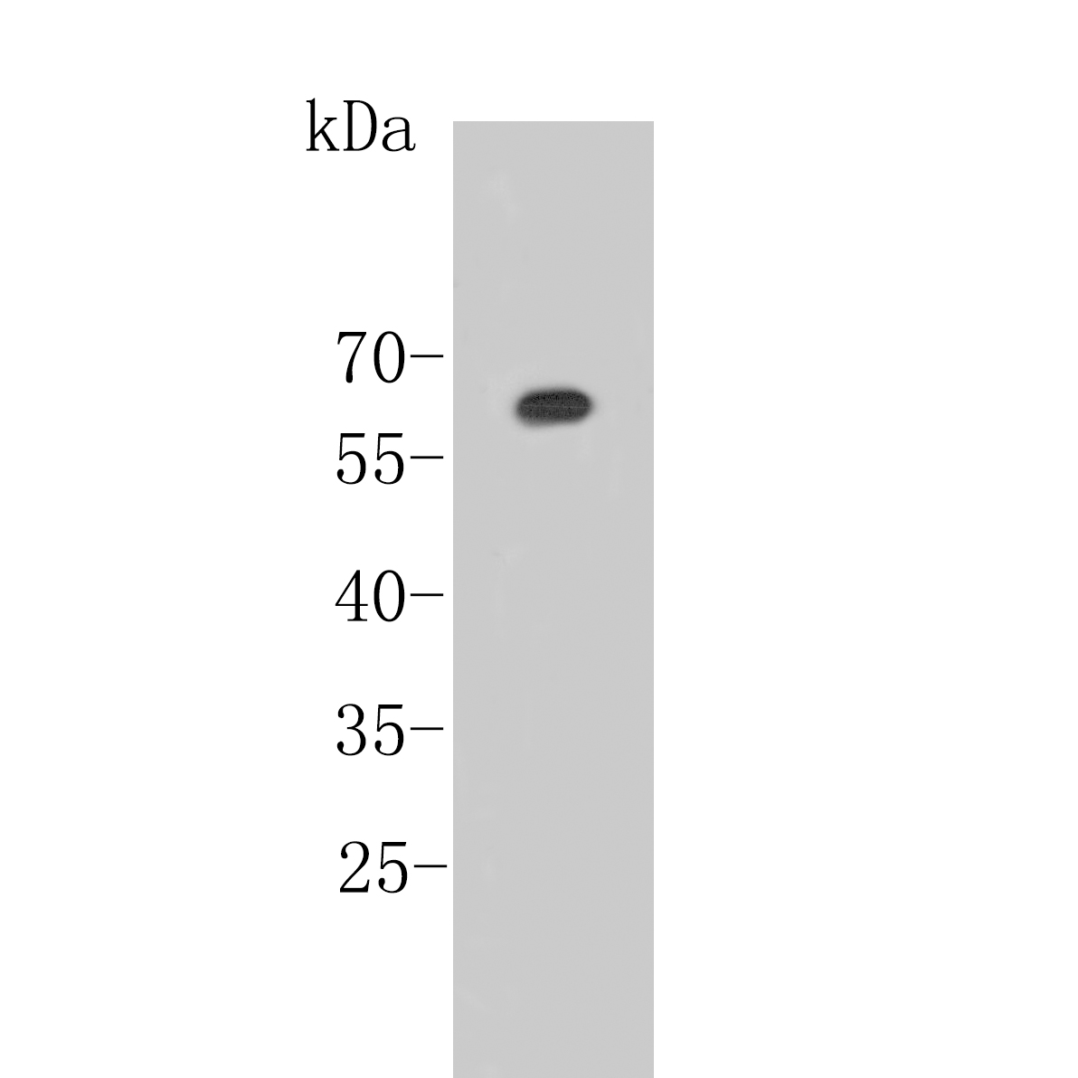 Western blot analysis of Estrogen Receptor alpha on different lysates. Proteins were transferred to a PVDF membrane and blocked with 5% BSA in PBS for 1 hour at room temperature. The primary antibody was used at a 1:500 dilution in 5% BSA at room temperature for 2 hours. Goat Anti-Rabbit IgG - HRP Secondary Antibody (HA1001) at 1:5,000 dilution was used for 1 hour at room temperature.<br />  Positive control: <br />  Lane 1: 293T cell lysate<br />  Lane 2: Rat ovary tissue lysate