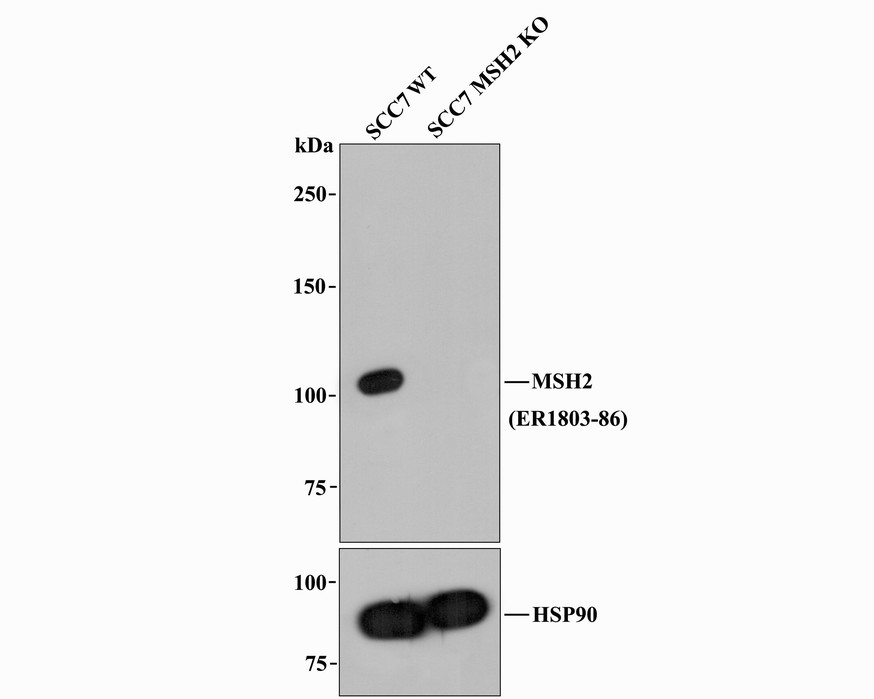 Western blot analysis of MSH2 on K562 cell lysate. Proteins were transferred to a PVDF membrane and blocked with 5% BSA in PBS for 1 hour at room temperature. The primary antibody was used at a 1:500 dilution in 5% BSA at room temperature for 2 hours. Goat Anti-Rabbit IgG - HRP Secondary Antibody (HA1001) at 1:5,000 dilution was used for 1 hour at room temperature.