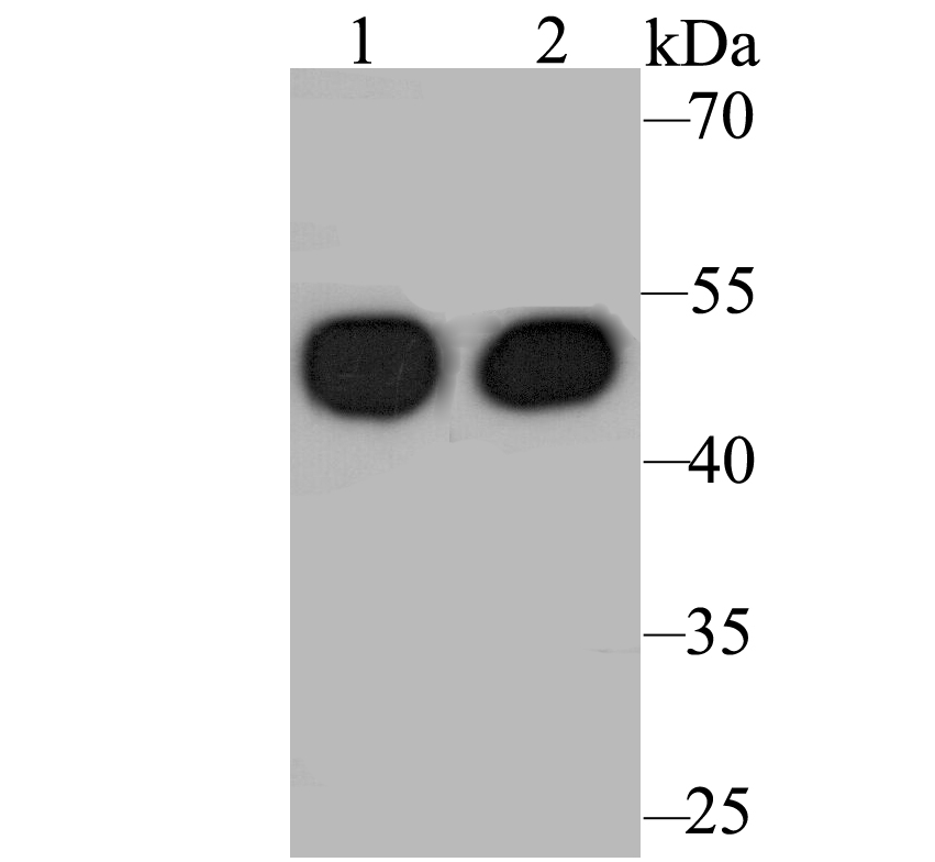 Western blot analysis of Cytokeratin 17 on different lysates. Proteins were transferred to a PVDF membrane and blocked with 5% BSA in PBS for 1 hour at room temperature. The primary antibody was used at a 1:500 dilution in 5% BSA at room temperature for 2 hours. Goat Anti-Rabbit IgG - HRP Secondary Antibody (HA1001) at 1:5,000 dilution was used for 1 hour at room temperature.<br />  Positive control: <br />  Lane 1: A431 cell lysate<br />  Lane 2: SiHa cell lysate