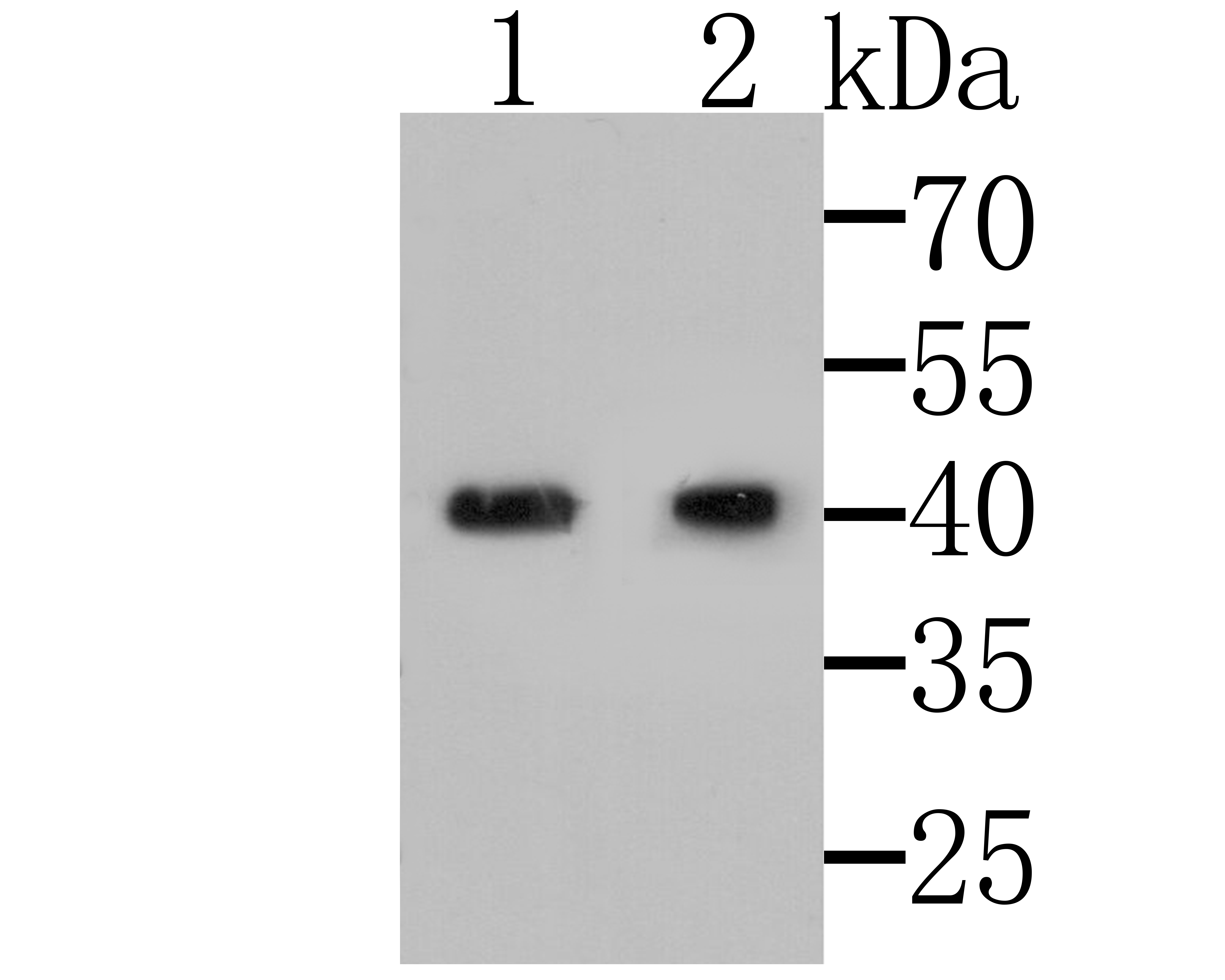 Western blot analysis of MICA + MICB on different lysates. Proteins were transferred to a PVDF membrane and blocked with 5% BSA in PBS for 1 hour at room temperature. The primary antibody was used at a 1:500 dilution in 5% BSA at room temperature for 2 hours. Goat Anti-Rabbit IgG - HRP Secondary Antibody (HA1001) at 1:5,000 dilution was used for 1 hour at room temperature.<br />  Positive control:<br />  Lane 1: U937<br />  Lane 2: Mouse bone marrow