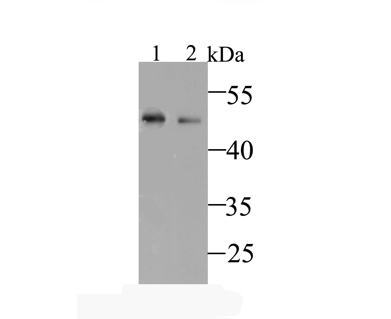 Western blot analysis of Kir6.2 on different lysates. Proteins were transferred to a PVDF membrane and blocked with 5% BSA in PBS for 1 hour at room temperature. The primary antibody was used at a 1:500 dilution in 5% BSA at room temperature for 2 hours. Goat Anti-Rabbit IgG - HRP Secondary Antibody (HA1001) at 1:5,000 dilution was used for 1 hour at room temperature.<br /> Positive control: <br /> Lane 1: Human liver tissue lysate<br /> Lane 2: Mouse liver tissue lysate