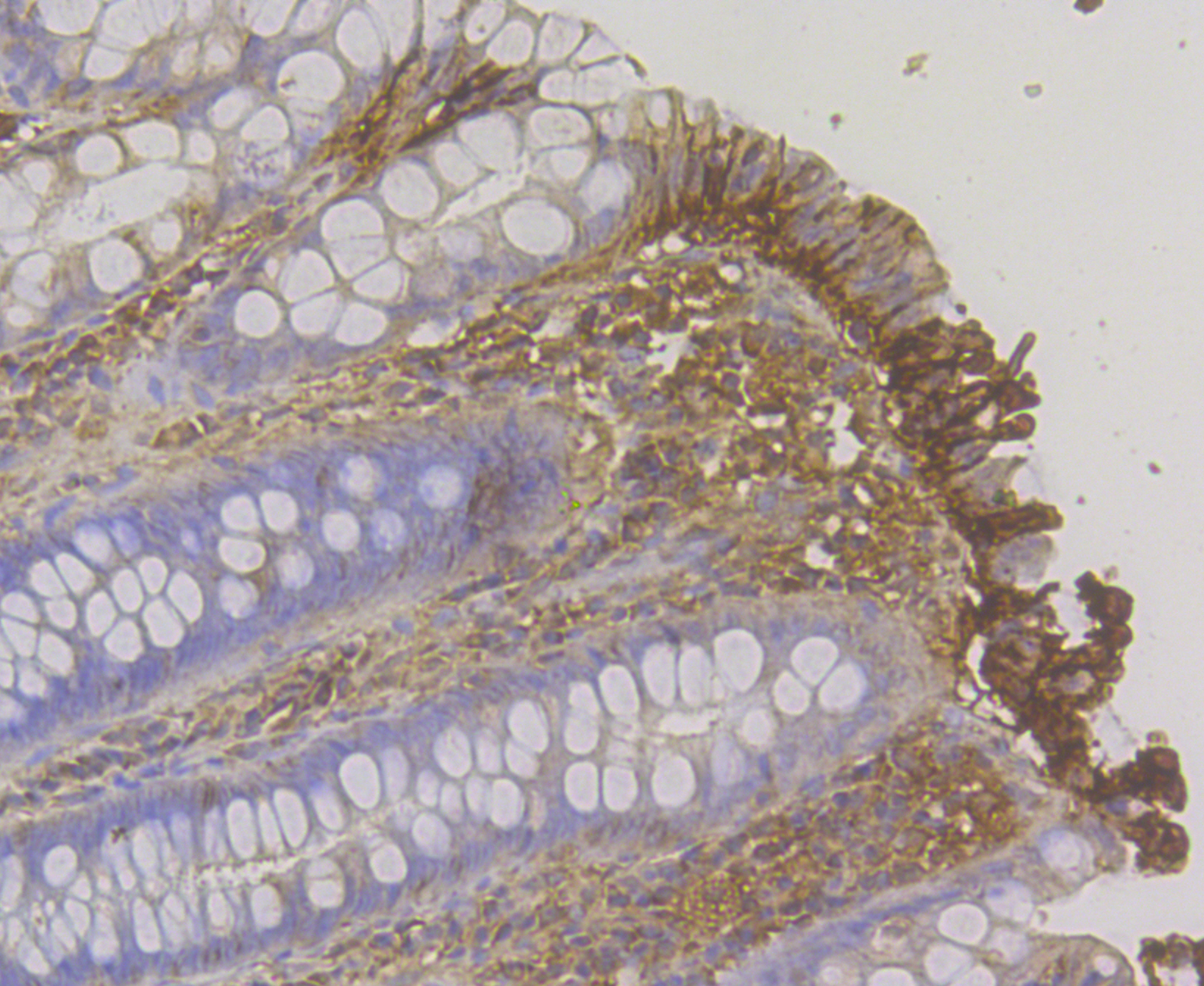 Immunohistochemical analysis of paraffin-embedded human colon tissue using anti-CDH17 antibody. The section was pre-treated using heat mediated antigen retrieval with Tris-EDTA buffer (pH 8.0-8.4) for 20 minutes.The tissues were blocked in 5% BSA for 30 minutes at room temperature, washed with ddH2O and PBS, and then probed with the antibody (ER1804-02) at 1/50 dilution, for 30 minutes at room temperature and detected using an HRP conjugated compact polymer system. DAB was used as the chromogen. Counter stained with hematoxylin and mounted with DPX.