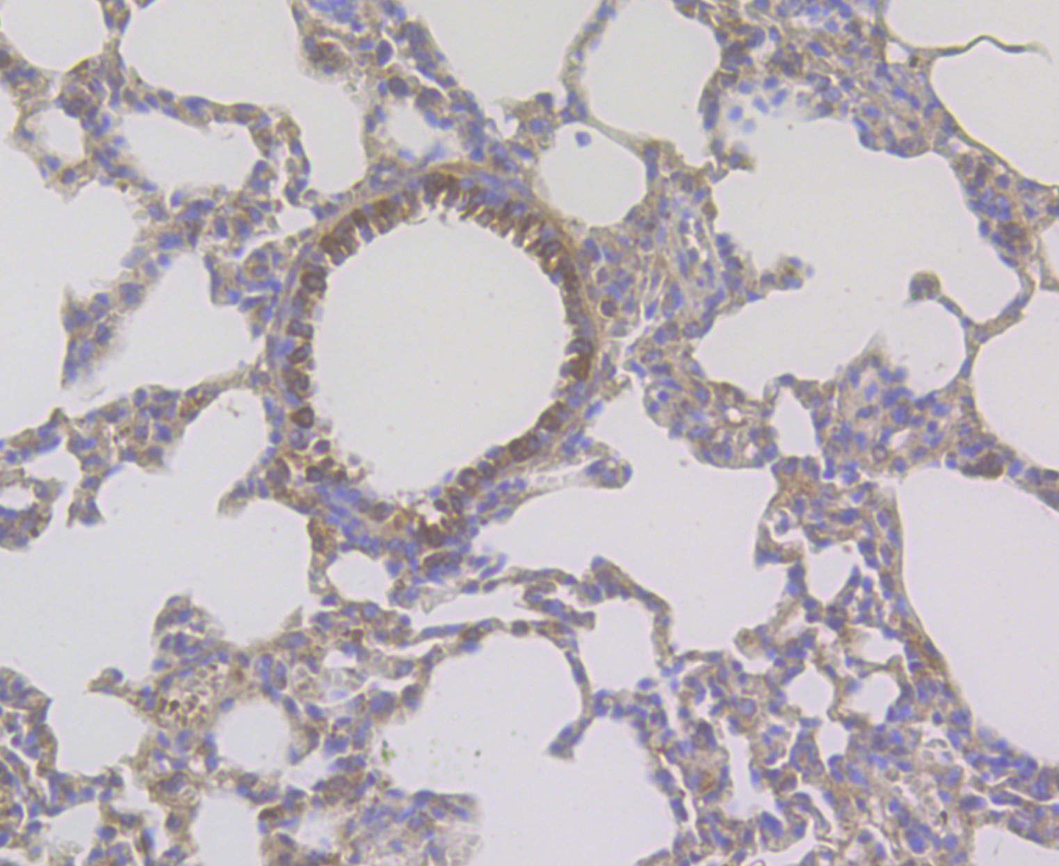 Immunohistochemical analysis of paraffin-embedded rat lung tissue using anti-CD163 antibody. The section was pre-treated using heat mediated antigen retrieval with Tris-EDTA buffer (pH 8.0-8.4) for 20 minutes.The tissues were blocked in 5% BSA for 30 minutes at room temperature, washed with ddH2O and PBS, and then probed with the antibody (ER1804-03) at 1/50 dilution, for 30 minutes at room temperature and detected using an HRP conjugated compact polymer system. DAB was used as the chromogen. Counter stained with hematoxylin and mounted with DPX.